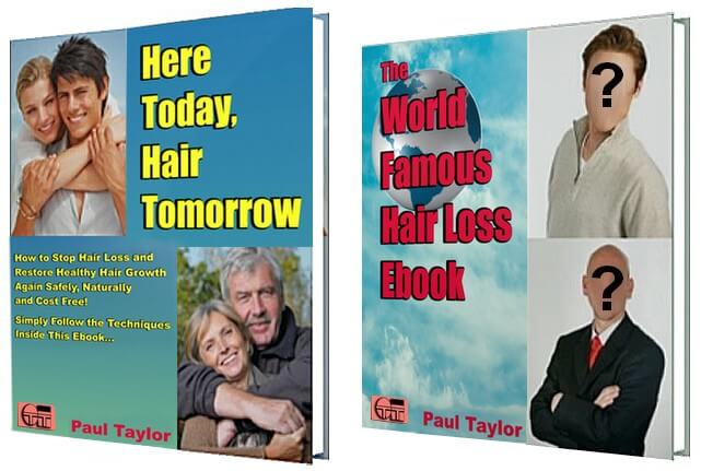 Here Today Hair Tomorrow and The World Famous Hair Loss Ebook covers