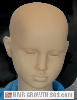 Alopecia totalis or universalis in a child