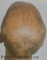 Alopecia totalis of the whole scalp