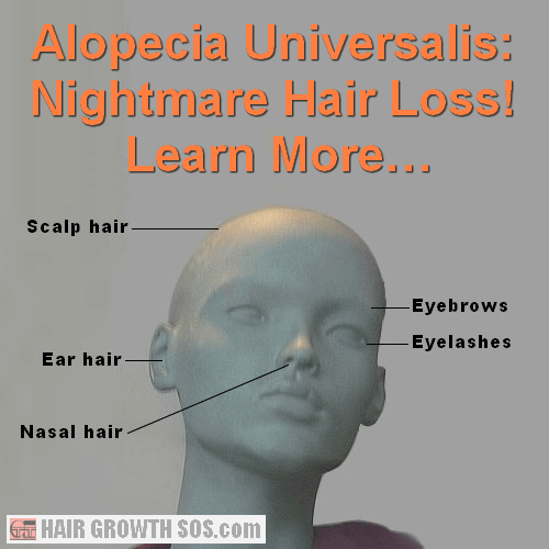 Model showing how alopecia universalis can affect the whole head #AlopeciaUniversalis