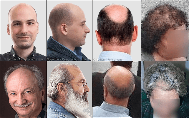 Androgenetic alopecia in men and women