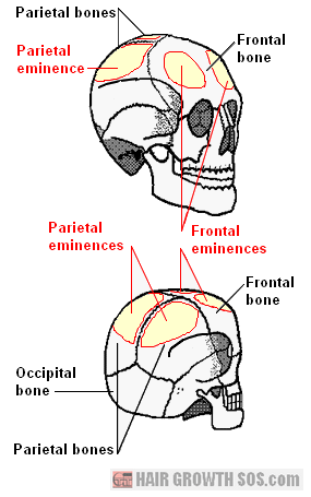 Frontal and parietal bones with frontal and parietal eminences shown
