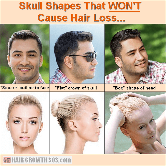 Box skull shapes showing strong hair growth