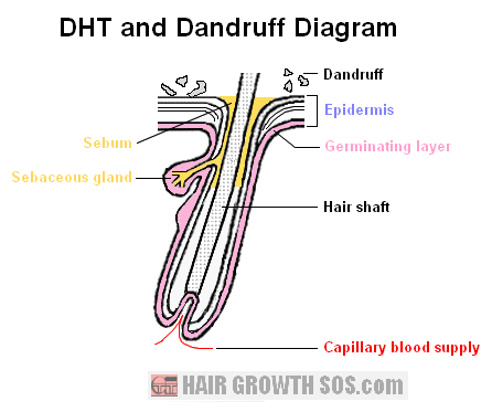 Diagram of DHT and dandruff in a hair follicle