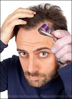 Man with receding hairline using a dermaroller