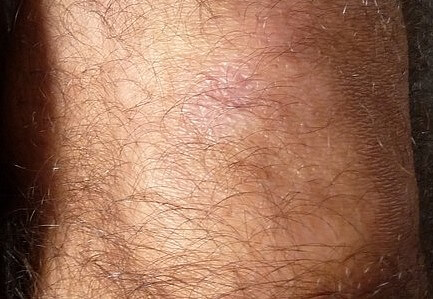 Folligen hair growth on knee