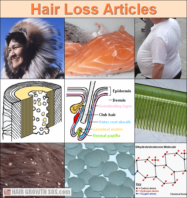 Hair loss articles