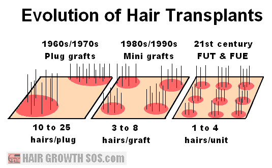lant techniques Hair density obtained from various transplant techniques