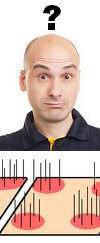 Hair transplant review