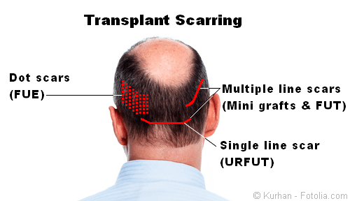 Hair transplant scarring