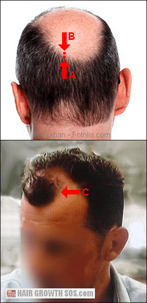 Problems in the male pattern baldness genetics theory highlighted