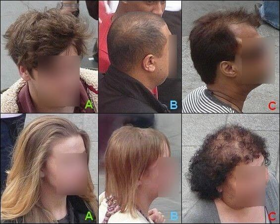 Men and women showing hair growth and hair loss