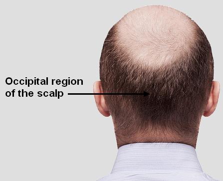 Occipital region of the scalp
