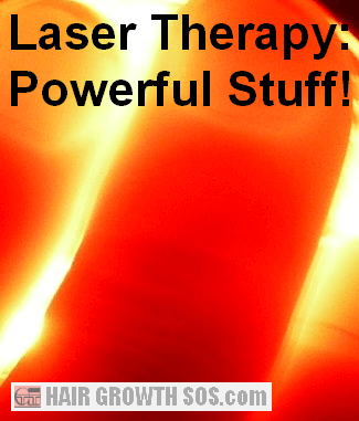 Review of laser light treatment for hair loss