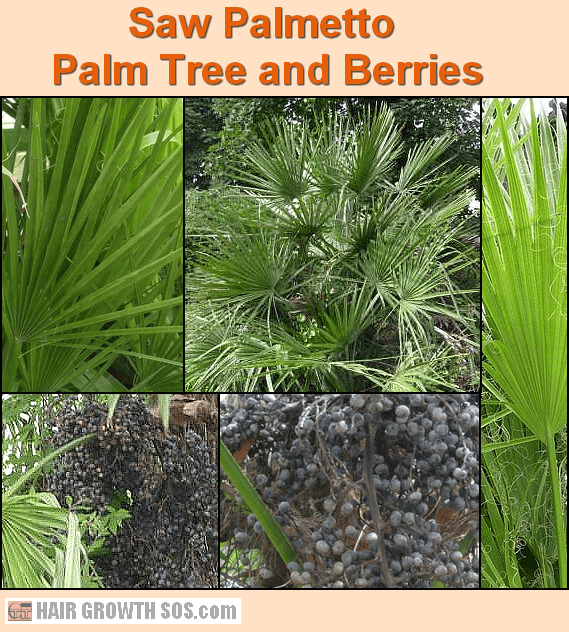 Saw palmetto beta sitosterol hair loss