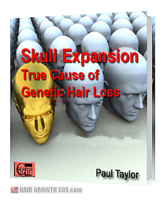 Skull expansion ebook cover