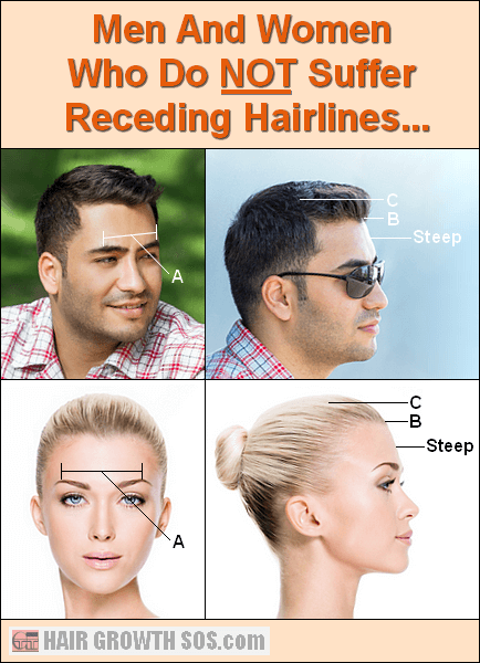 Super Receding Hairline Receding Temples Learn How And Why Hairstyle Inspiration Daily Dogsangcom