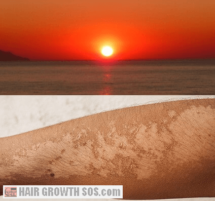 A strong sun can cause skin damage and skin peeling