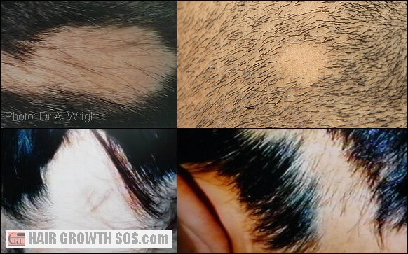 Variations in sudden hair loss caused by areata