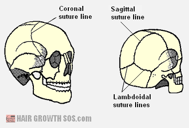 Suture lines of the skull bones