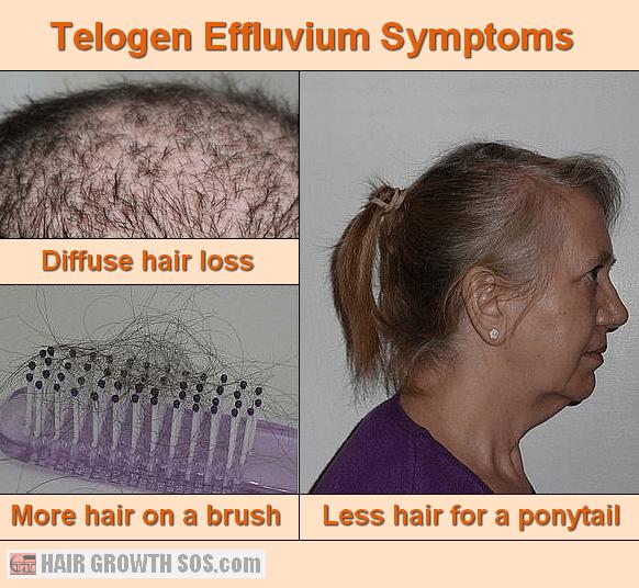Telogen effluvium symptoms