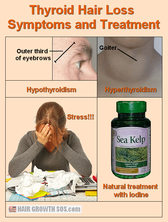 Thyroid hair loss symptoms and treatment