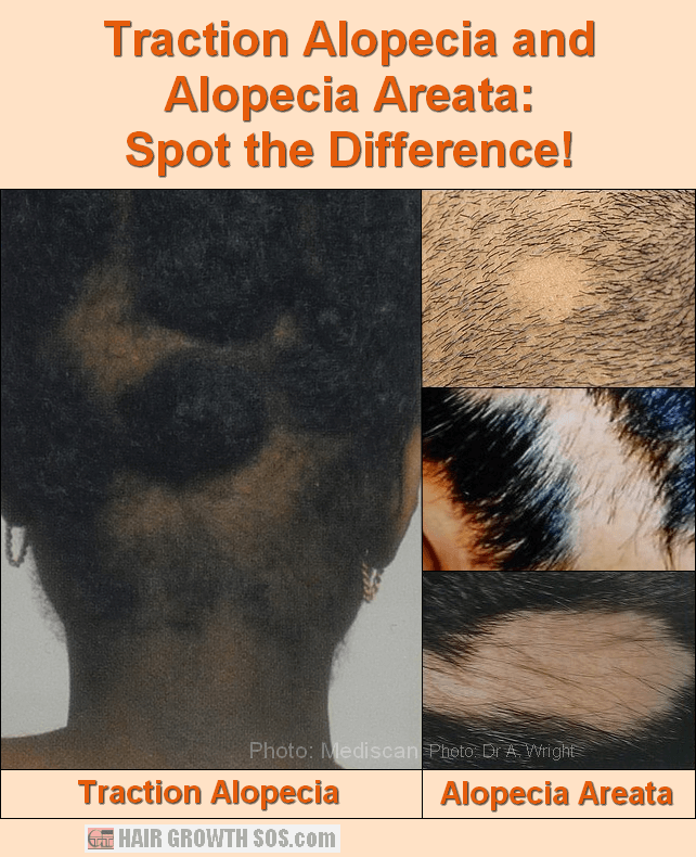 Traction alopecia and alopecia areata