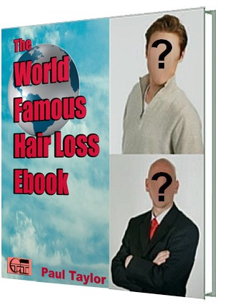 The World Famous Hair Loss Ebook cover