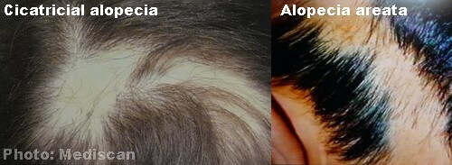 Cicatricial alopecia and alopecia areata