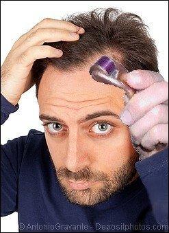 Man with receding hairline using a dermaroller