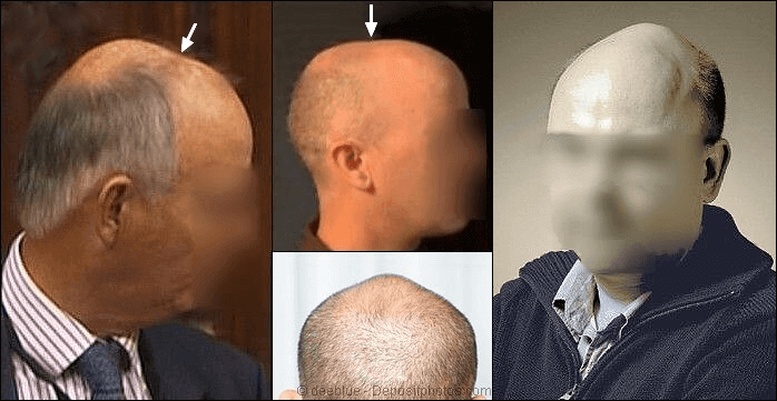 Extreme skull expansion and hair loss