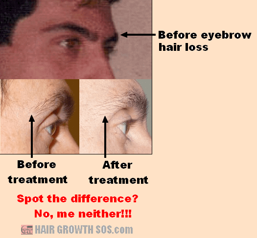 Eyebrow hair loss development