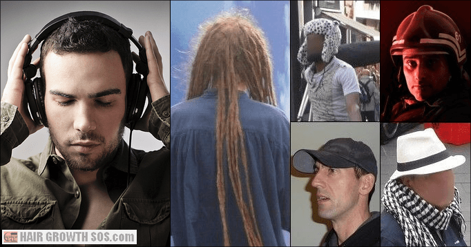 Friction alopecia risk in men