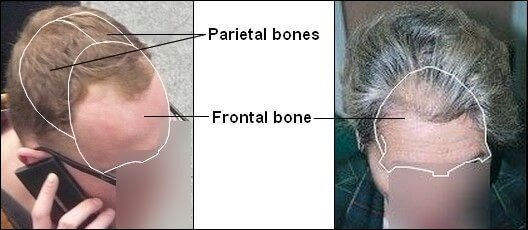 Man and woman with position of frontal and parietal bones