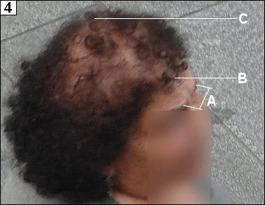 Lady with androgenetic alopecia