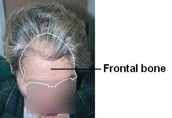 Lady with frontal hair loss and frontal bone position shown