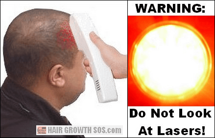 Laser comb side effects risk