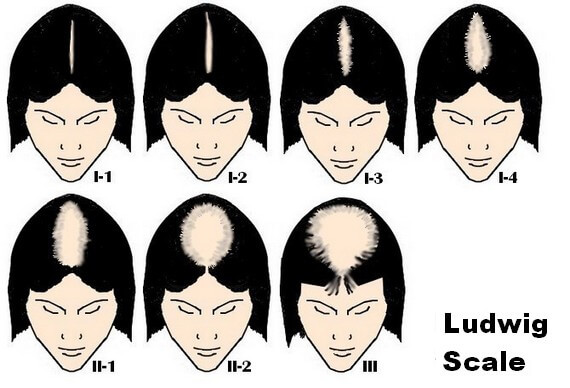 Ludwig scale of hair loss in women