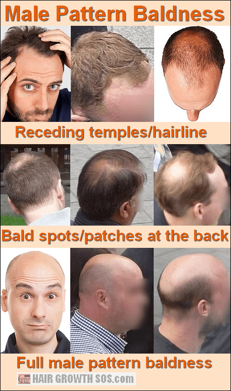 Bald head from above showing the frontal and parietal bones