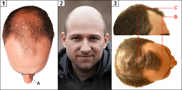 Men with severe frontal hair loss