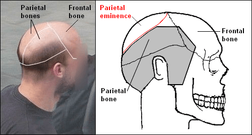 Photo and diagram showing baldness and the parietal bone position