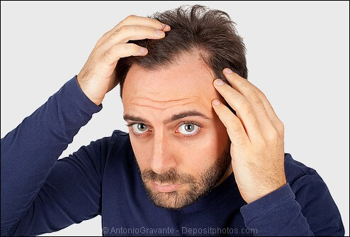 Man developing a receding hairline