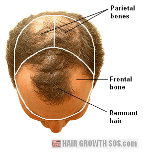 Strong signs of balding