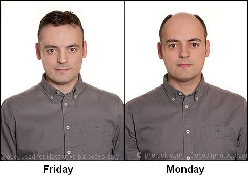 With and without using a hair loss concealer